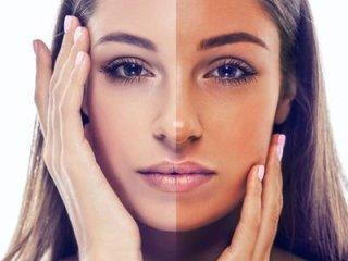 medico tumori della pelle
