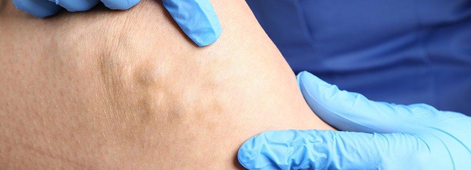 Medico controlla vene su gamba