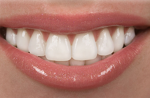 A smile after seeing a cosmetic dentist in Cincinnati