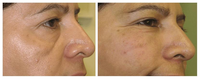 Non surgical cheek augmentation