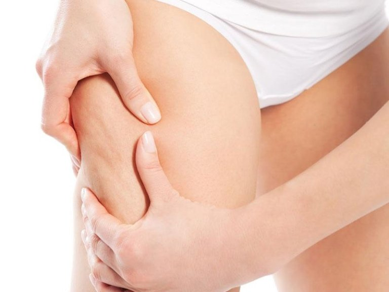Trattamenti Anti-cellulite Olbia