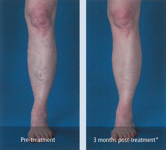 Pre-and post-treatment varicose veins