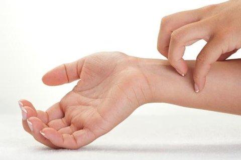 malattie della pelle dermatite