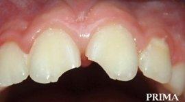 trauma denti