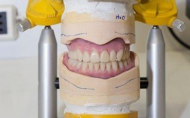 trattamenti protesi dentali