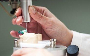 trattamenti implantologia