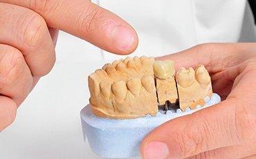 trattamenti endodonzia