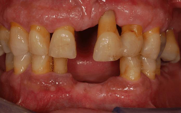 caso 1 post-trattamento