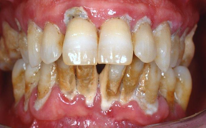 caso 3 pre-trattamento