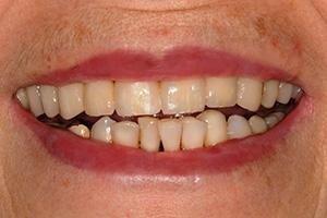 Ripristino del sorriso - Dopo il trattamento