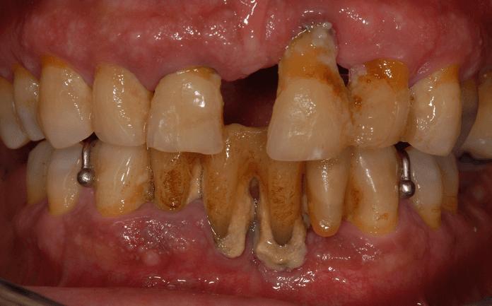 caso 1 pre-trattamento
