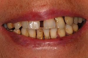 Ripristino del sorriso - Prima del trattamento