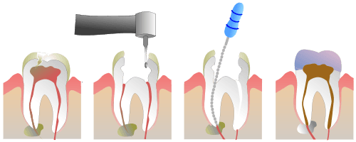 Photo Of Root Canal Therapy