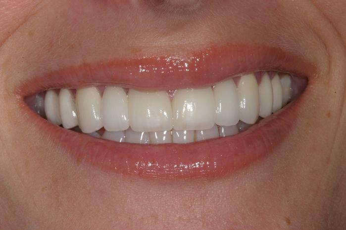 Photo Of Customer After Dental Work