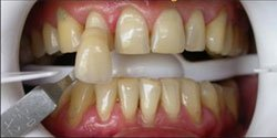 Photo Of Before Teeth Whitening