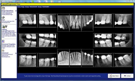 Photo Of Digital Dental X-Rays