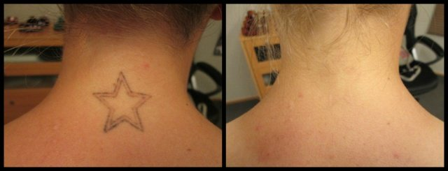 Laser Tattoo Removal Experts | Laserfied Laser Tattoo