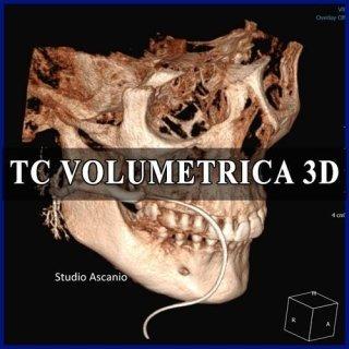 TC VOLUMETRICA