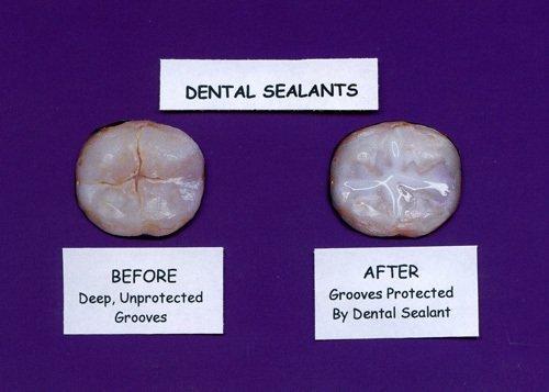 Dental Sealant Before & After, Dental Implants in Geneva NY