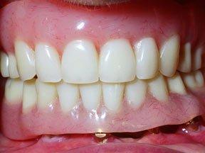 Dental Implants Geneva NY