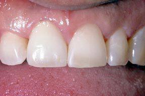 Dental Implants Canandaigua NY