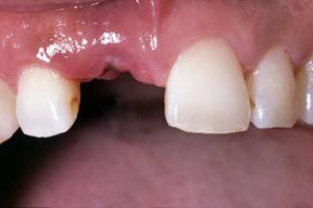 Implants Geneva NY