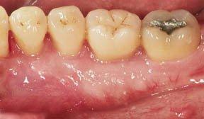 General Dentistry Naples NY