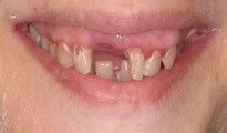 Dentures Naples NY