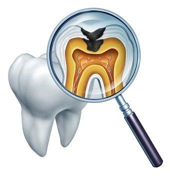 Cavity Diagram, Restoration Dentistry in Canandaigua NY