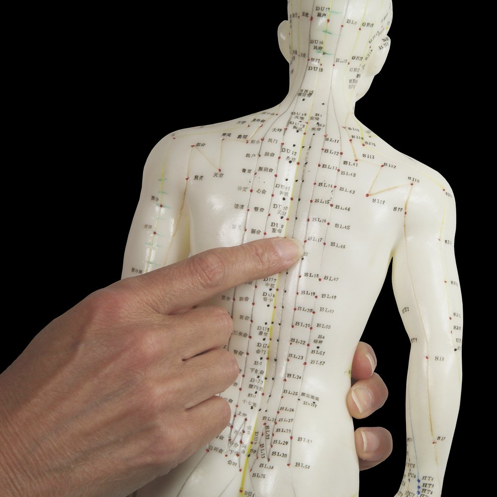 Acupuncture therapy by professional