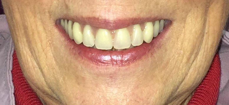 Teeth in a Day dental implants
