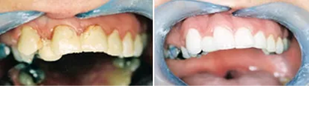 Ceramic veneers for an advanced case which refused orthodontic (brace) therapy.