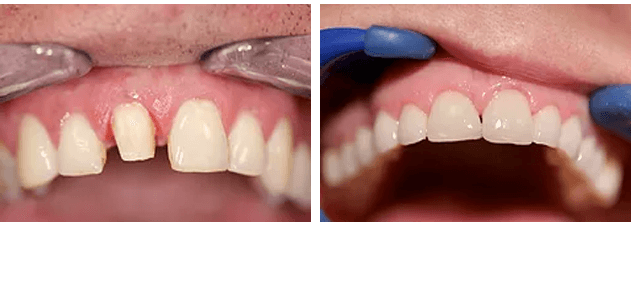 Before and After Cosmetic Crowns