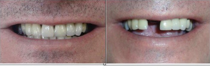 Closure of gap with a Dental Implant