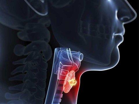 Patologie tumorali laringe