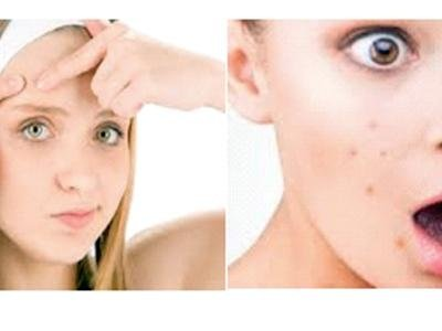 Trattamenti acne