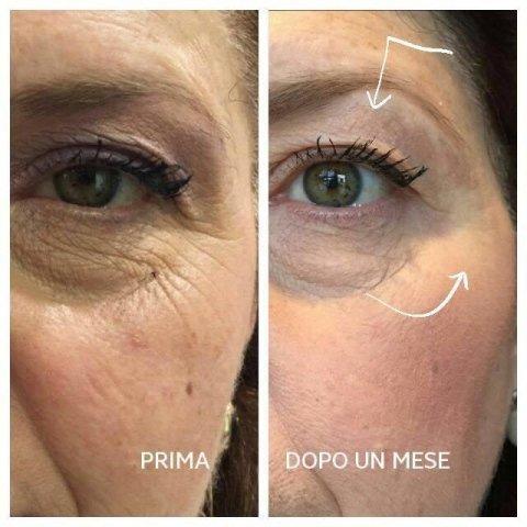 trattamenti viso anti invecchiamento