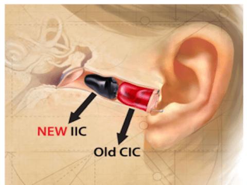 accessori udito