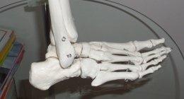 podologia, cura del piede problemi articolazioni
