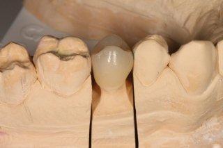 Capsula su dente naturale