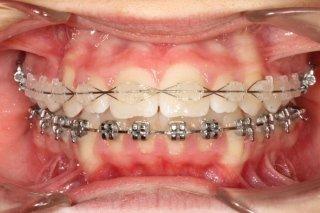 Ortodonzia Fissa in Ceramica