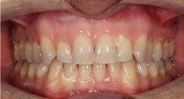 sbiancamento dentale adulti