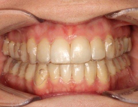 Allineamento denti trasparenti