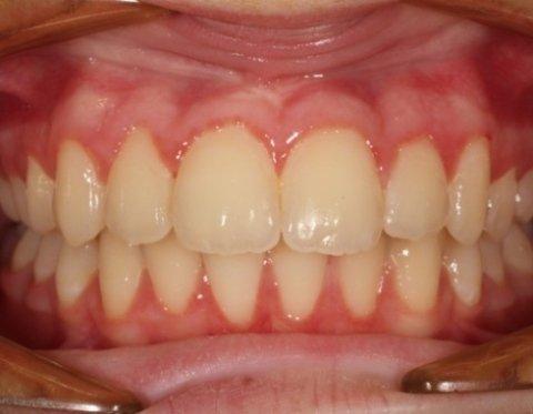 Ortodonzisti pediatrici