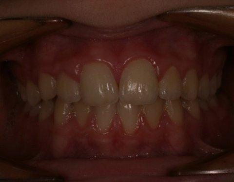 Applicazione apparecchi ortodontici