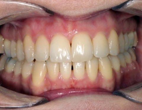 Alternative apparecchi ortodontici