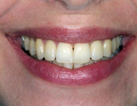 Allineamento dentale senza apparecchio