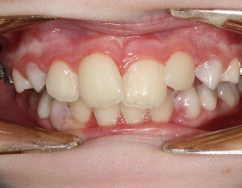 Apparecchi ortodontici mobili