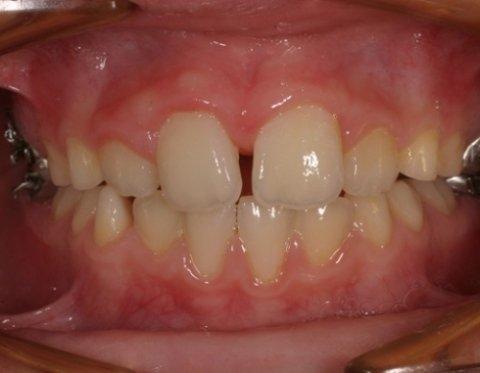 Ortodonzia bambini