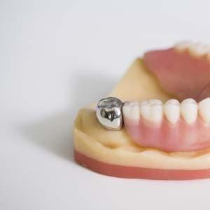 impianto dente in titanio
